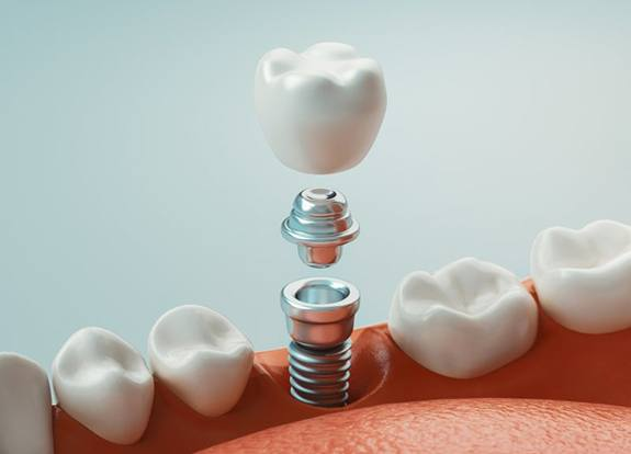 Diagram of a dental implant in Grand Prairie
